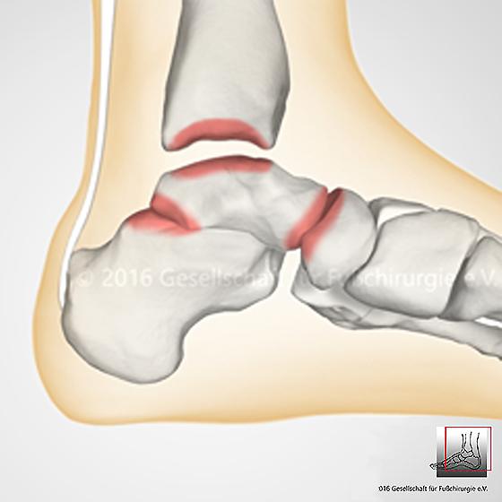 Arthrose im Sprunggelenk - Gesellschaft für Fuß- und ...