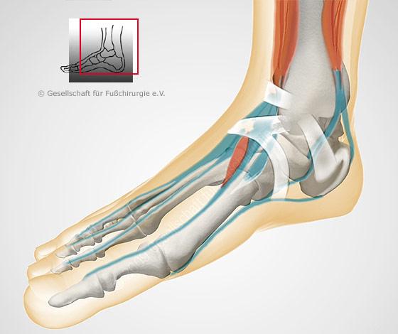Fußanatomie - Gesellschaft für Fuß- und Sprunggelenkchirurgie e.V.