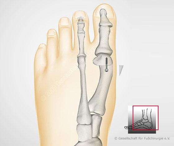 Der Kern auf dem Finger des Beines oben die Behandlung in den häuslichen Bedingungen